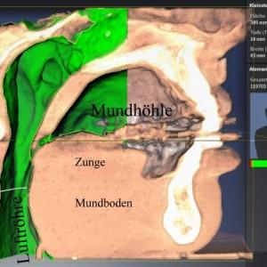 Schnarch- und Apnoediagnostik – der gesunde Patient